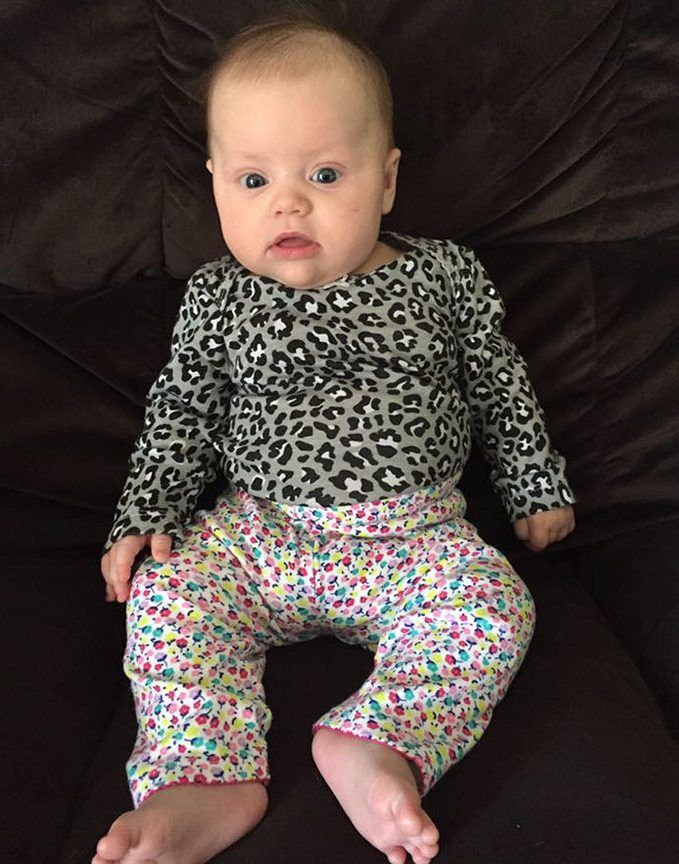 Baby dressed badly